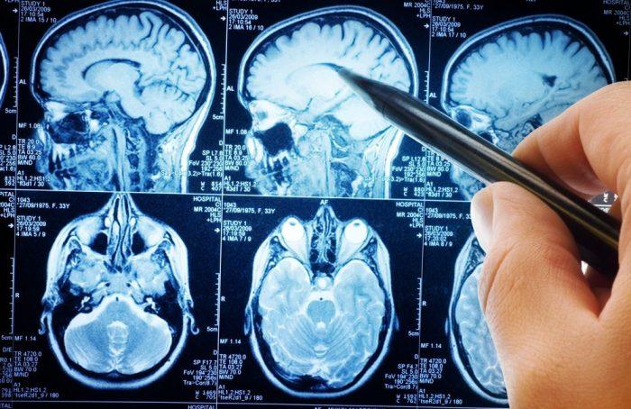 """مغز های """"حتی"""" بهتری برای زیستن! گروه علوم اعصاب دانشگاه علوم پزشکی شیراز"""