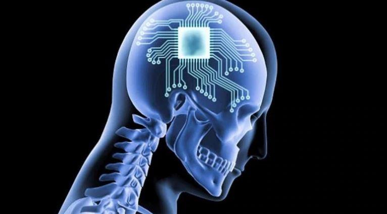 پروژه جدید تسلا یک ایمپلنت عصبی پیچیده