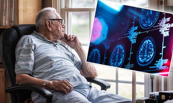 ردیابی تغییرات مغزی در بیماری آلزایمر
