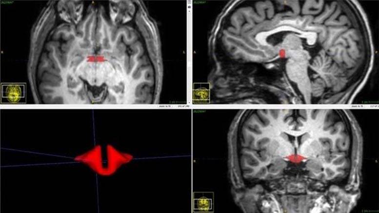 """تأثیر """"قرص ضد بارداری"""" بر روی عملکرد وساختار مغز"""