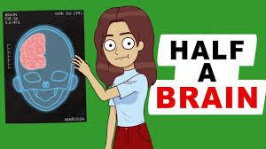 عملکرد شگفت انگیز مغز با یک نیمکره