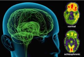 چه اتفاقی در مغز افراد مبتلا به اسکیزوفرنی رخ می دهد؟