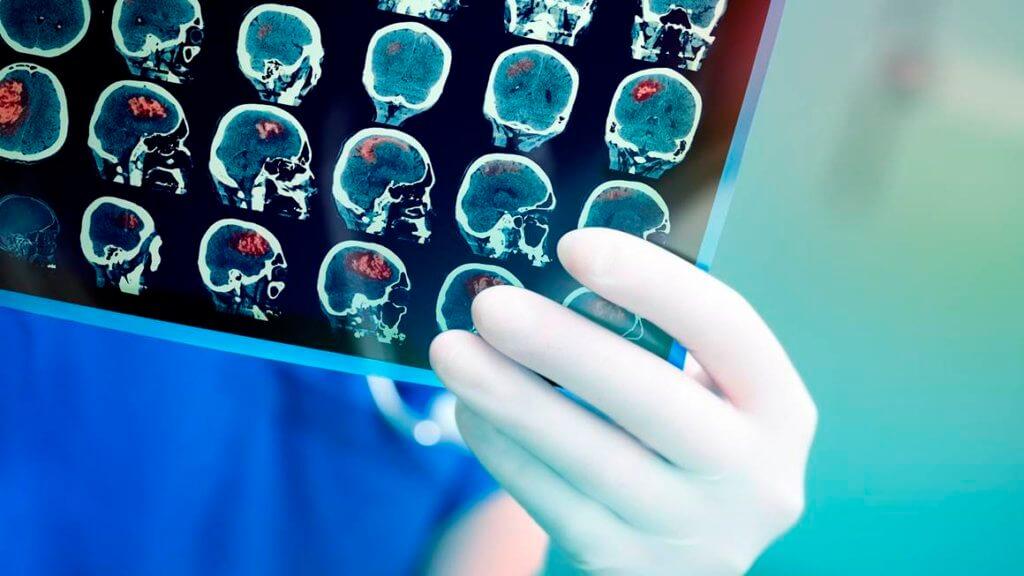 ژن درمانی، نوید بخش بهبود بیماری های مربوط به مغز