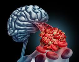 انتقال خون می تواند مغز را از آسیب سکته مغزی نجات دهد!
