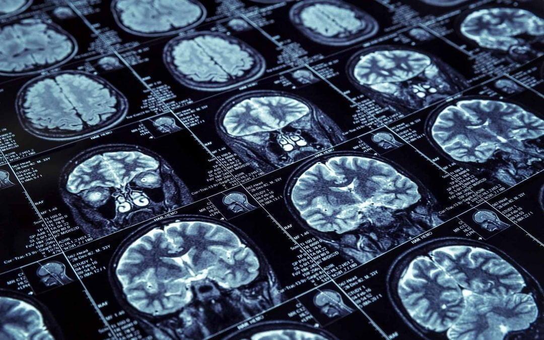 پیش بینی خطر سکته مغزی با ماشین حساب آنلاین