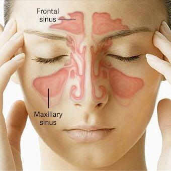 ۷ درمان خانگی برای سردرد سینوسی